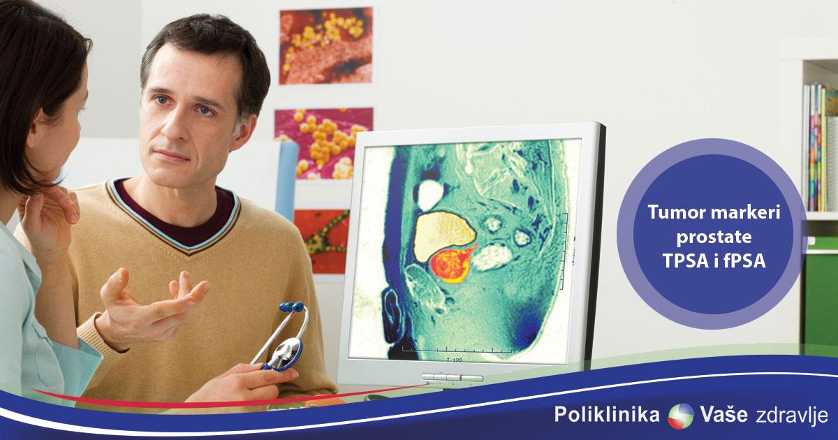 Tumor markeri prostate TPSA i fPSA
