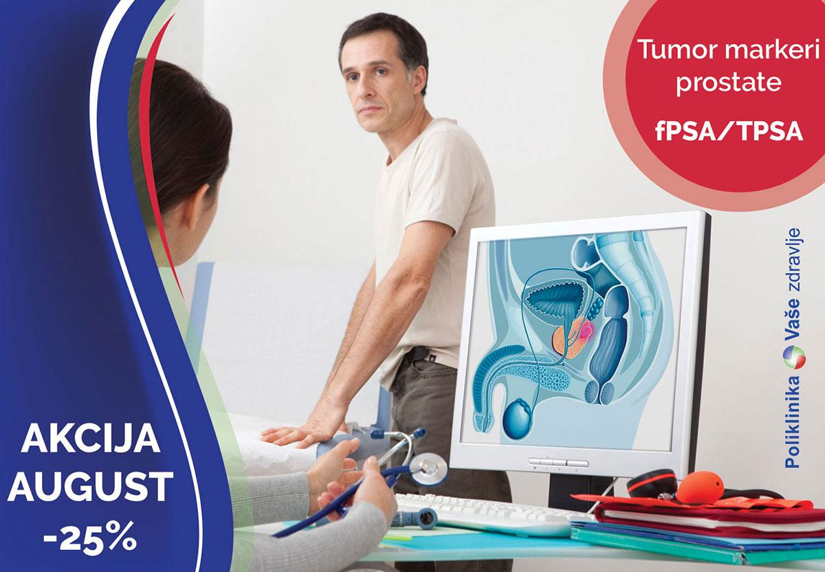 Tumor markeri prostate fPSA i TPSA