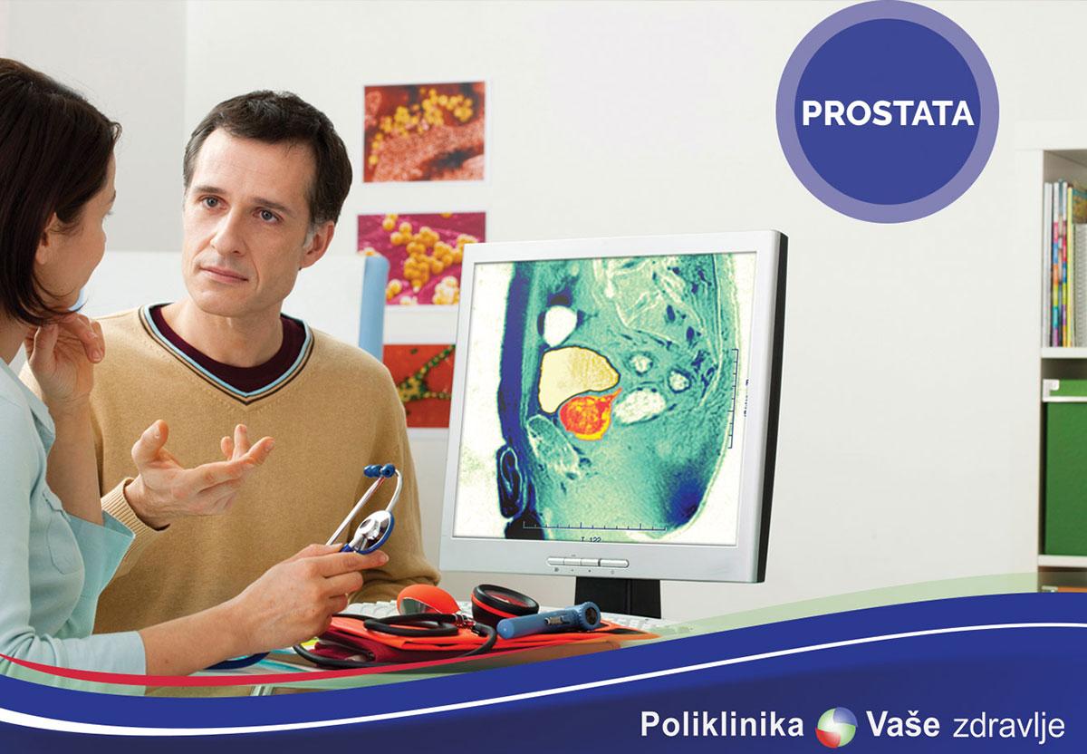 Tumor markeri prostate