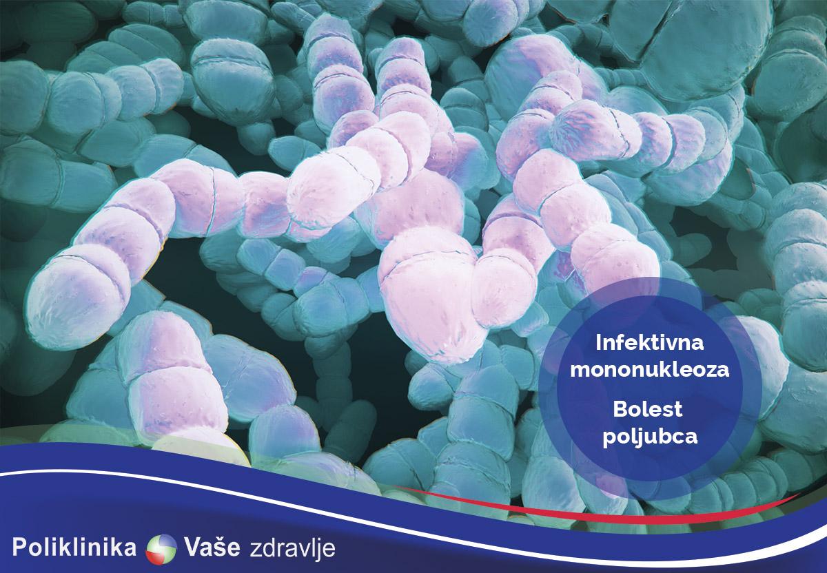 Infektivna mononukleoza ili bolest poljubca