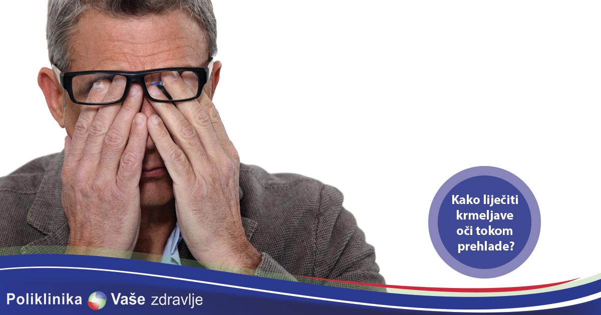 Kako lijeciti krmeljave oci tokom prehlade