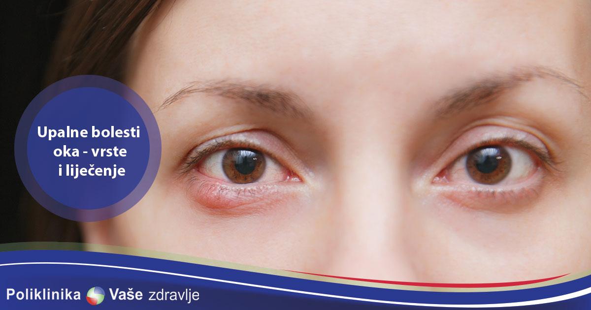 Upalne bolesti oka - vrste i lijecenje